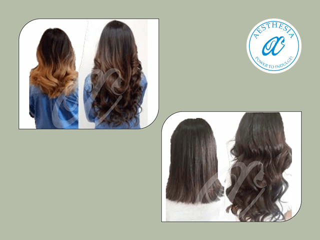 Aesthesia Hair Experts Zirakpur - Non-surgical Hair with shower system in Rs14999 only