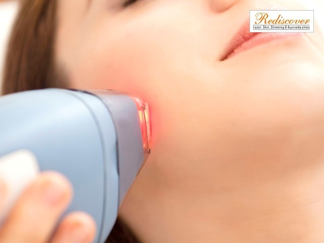 Rediscover  Sector 7 Dwarka  New Delhi- Laser Hair Removal (Chin & Upper Lip: 1 Session)